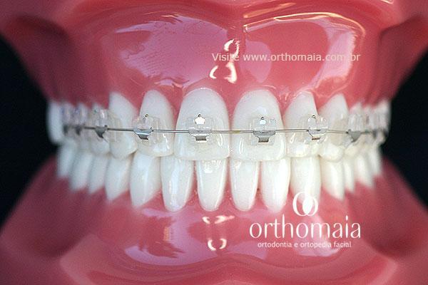 aparelho-ortodontico-1